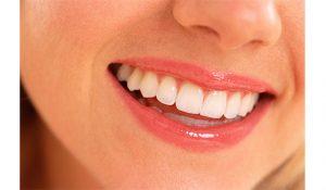 gigi ngilu pada gigi sensitif (1)
